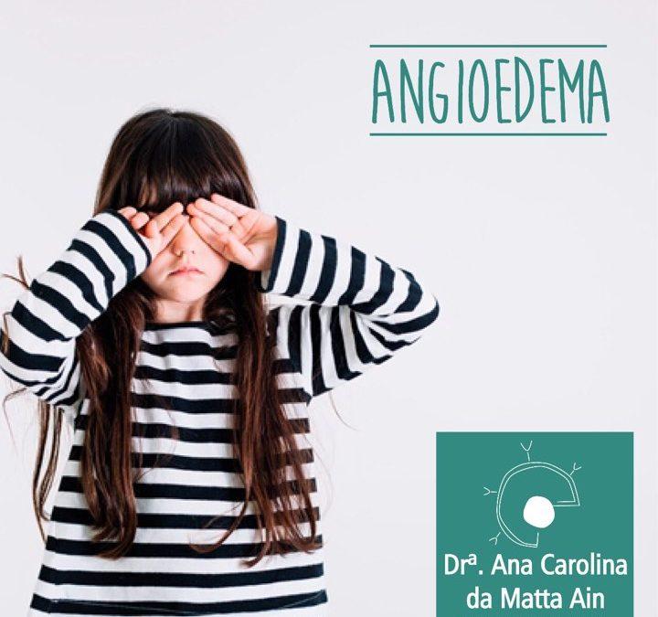 Angioedema: causas e tratamento, dicas da alergista Ana Carolina da Matta Ain