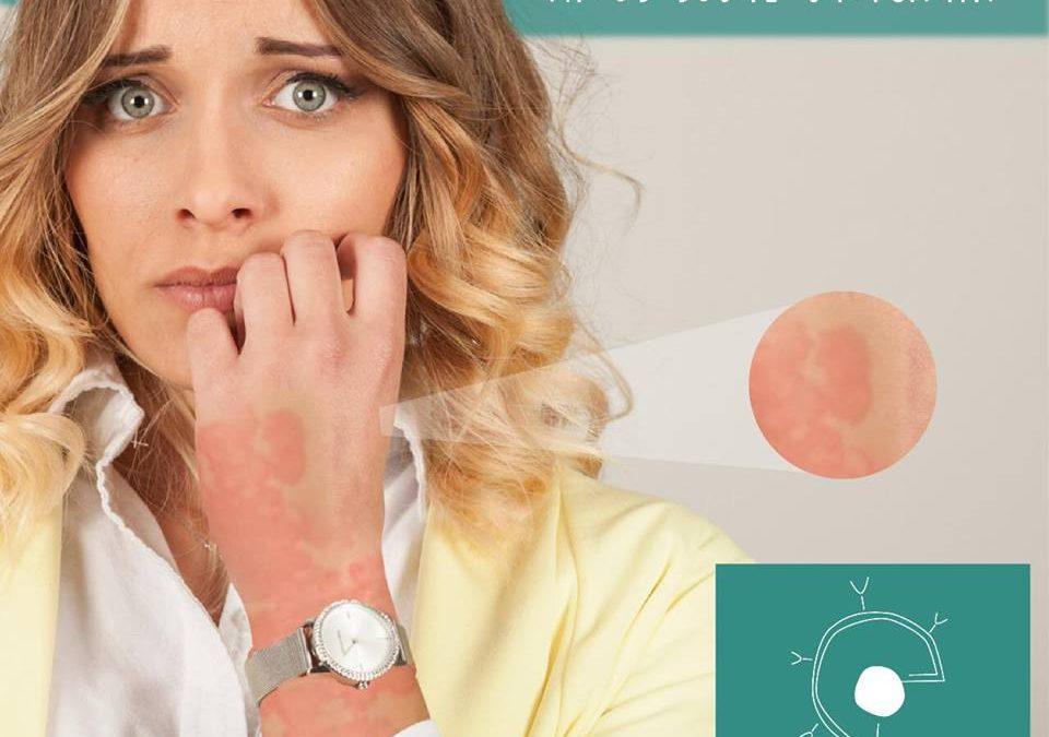 Dra. Ana Carolina Da Matta Ain explica os mitos envolvendo a urticária